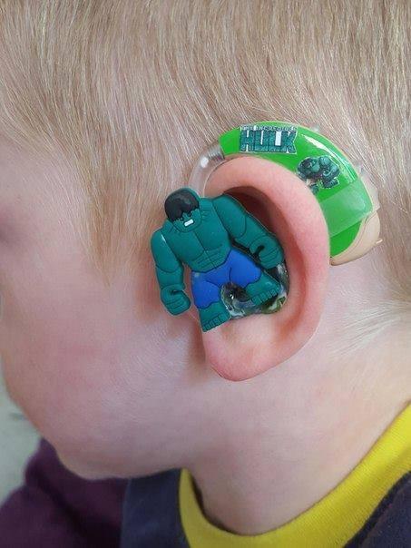 The Hulk hearing aid