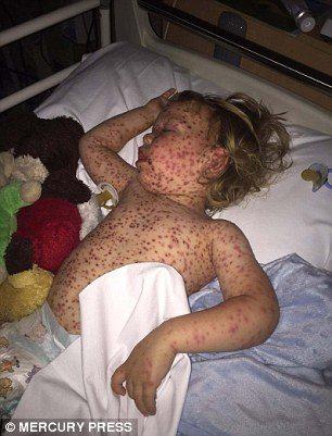 worst case of chickenpox